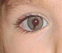 ojo-madeleine-mccann